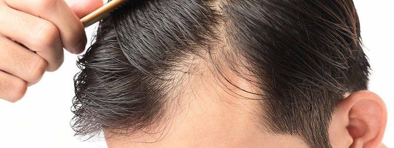 رژیم غذایی درمانی ریزش مو